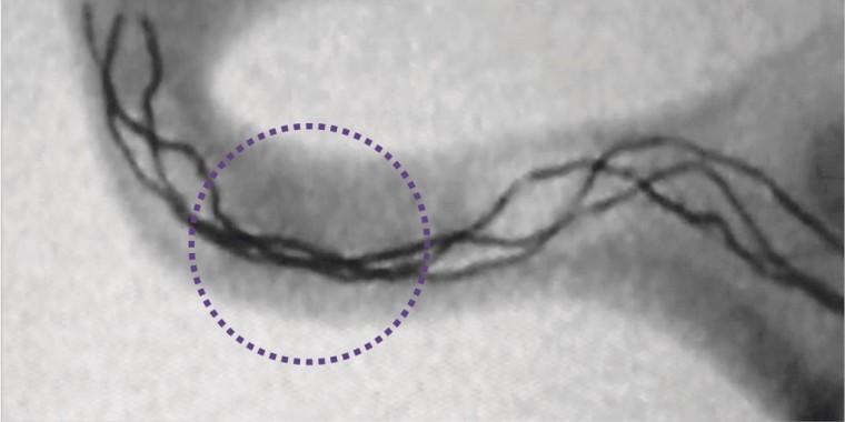 Trevo XP ProVue Retriever visible under fluoroscopy