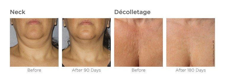 Ultherapy_image