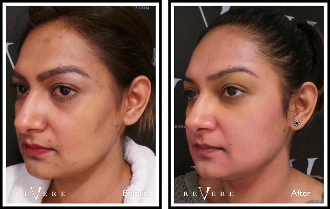 Revere - skin transformation