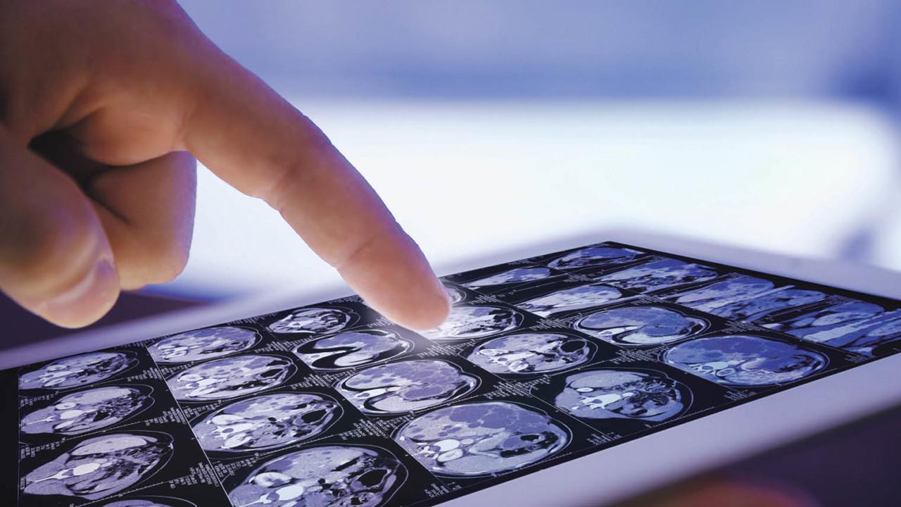 Finger on tablet displaying brain scans