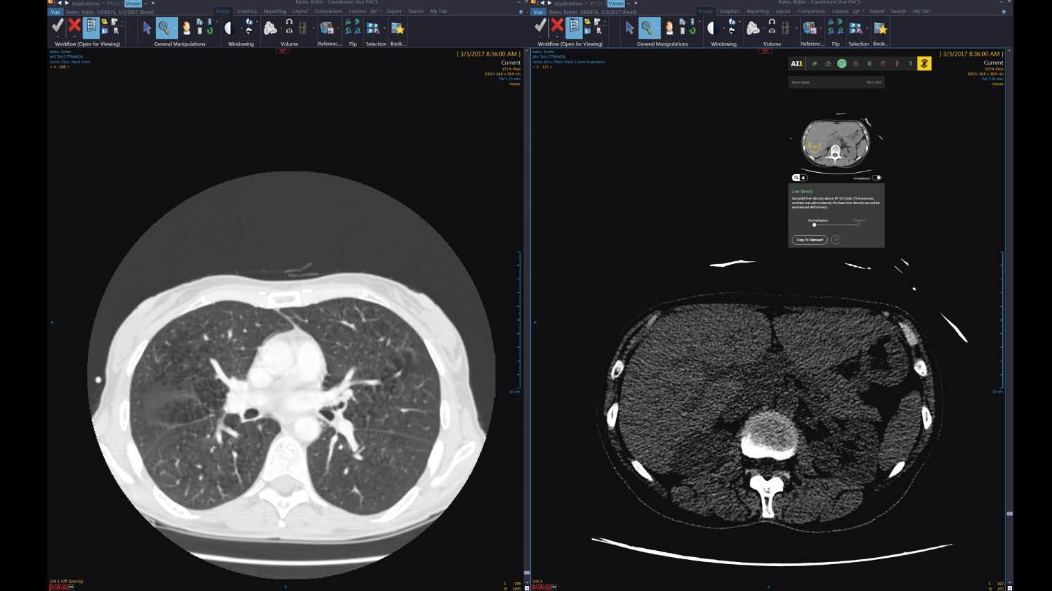 Zebra medical scan of liver