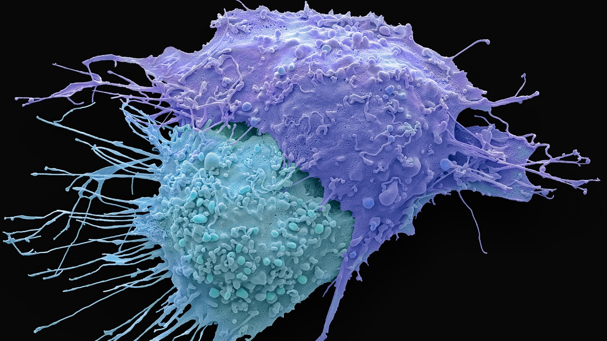 A coloured scanning electron micrograph of ovarian cancer cells
